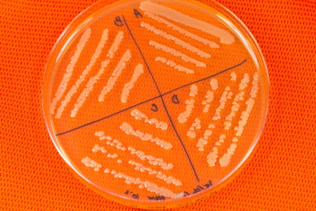 Petri dish with bacterial  colonies  photo