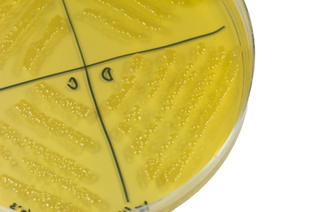 Petri dish with bacterial  colonies Stock Photo - 20431028