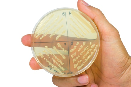 Petri dish with bacterial  colonies  Stock Photo - 20431056