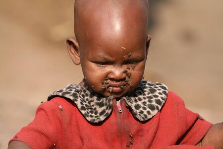 Ngorongoro,Tanzania - August 17,2007 :  Masai Child covered with flies, the Masai build their huts with animal dung and mud which attracts many insects. Stock Photo - 6886335