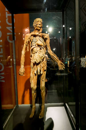 corpses: February 14, 2016.Saint-Petersburg.Anatomical exhibits at the exhibition the human Body in St. Petersburg. Russia. Editorial