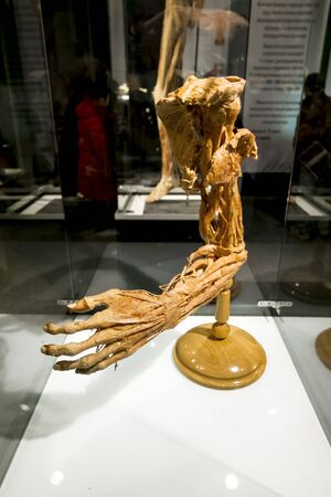corpses: February 14, 2016. Saint-Petersburg. The Human hand at the exhibition the human Body in St. Petersburg. Russia.