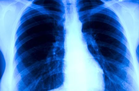 x ray image: x-ray image of the thorax of  a smoker Stock Photo