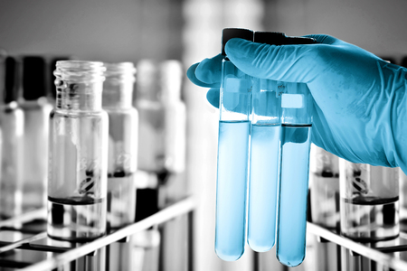 equipos medicos: Tubos de ensayo en la mano cient�fico Foto de archivo