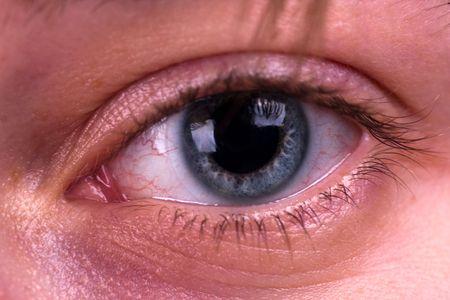 contact lenses: Los ojos cansados y lentes de contacto. Close up. Foto de archivo
