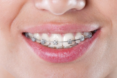 teeth with braces, close up  young woman photo  Фото со стока
