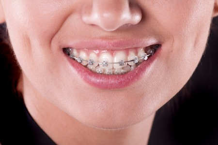 teeth with braces, close up  young woman photo Stock Photo - 27787734