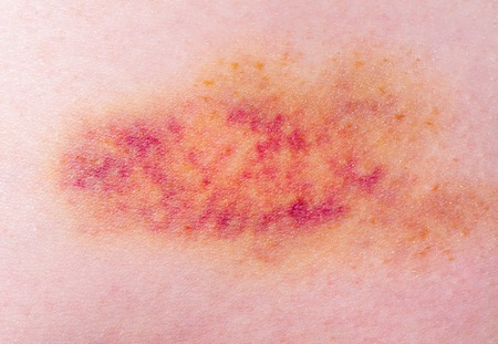 contusion: Closeup on a Bruise