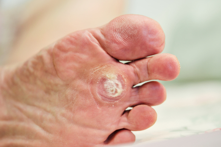 Wart verrucas plantar. Fasciitis Wart on foot. Decease on foot skin. Wart plantaR callus foot