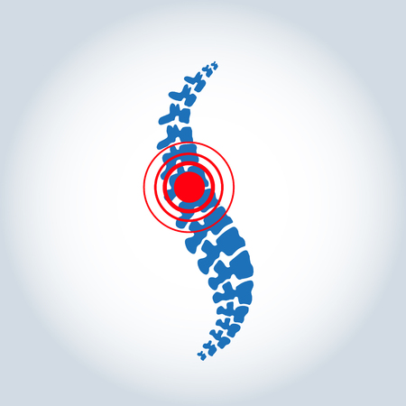 Vector template. Human spine isolated silhouette illustration. Spine pain medical center, clinic, rehabilitation, diagnostic, surgery element. Flat modern silhouette illustration. Scoliosis  イラスト・ベクター素材