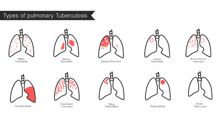 Types of tuberculosis. Vector silhouette medical illustration of human body organ - lungs with trachea. Poster for clinic, hospital.