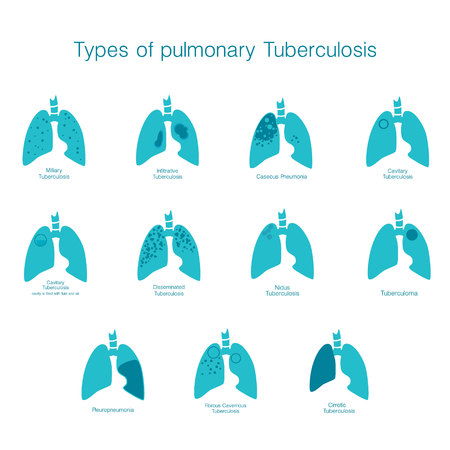 Types of tuberculosis. Vector silhouette medical illustration of human body organ - lungs with trachea.