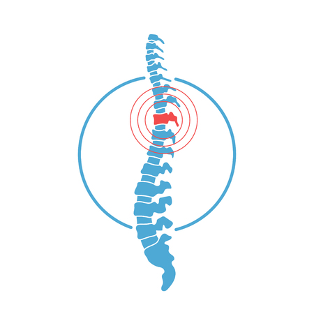 Vector human spine with pain isolated silhouette illustration. Spine pain medical center, clinic, rehabilitation, diagnostic, surgery icon element. Spinal icon symbol design. Concept of scoliosis