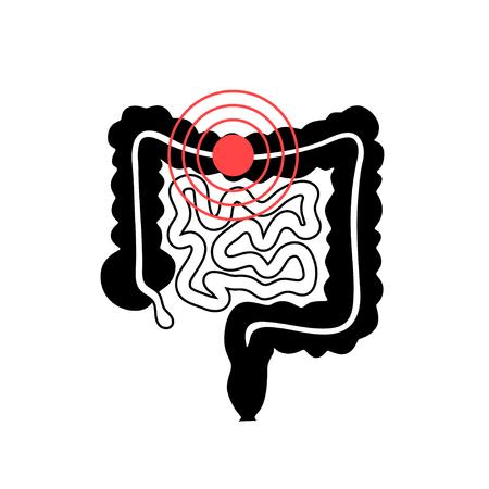 Vector geïsoleerde illustratie van de anatomie van de dikke en dunne darm. Pictogram van het menselijke spijsverteringssysteem. Medisch centrum voor gezondheidszorg, chirurgie, ziekenhuis, kliniek, diagnostisch pictogram. Inwendig donororgel symbool posterontwerp. Bijdrage
