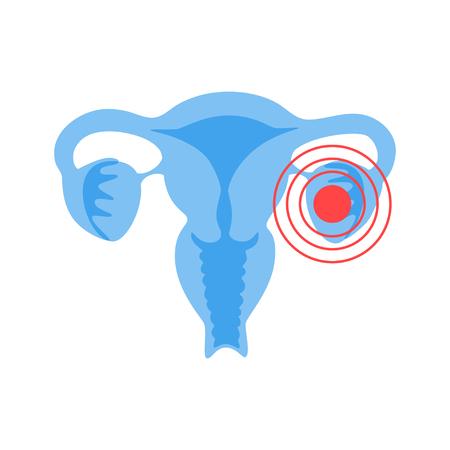 Vector isolated illustration of female pain reproductive system anatomy. Uterus, cervix, ovary, fallopian tube icon. Woman medical center, hospital, clinic, diagnostic logo. Internal organ symbol design. Illustration