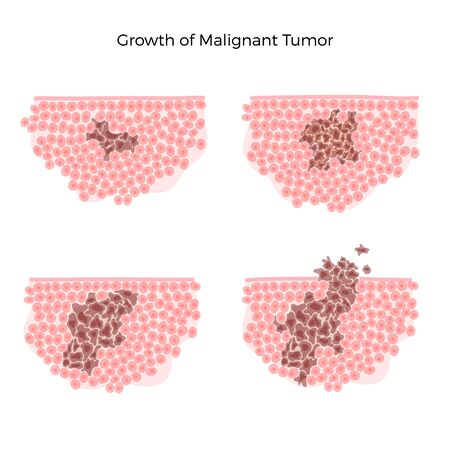 Vector isolated illustration of malignant tumor in healthy tissue. Spreading of cancer cells, tumor development. Medical infographic for poster, educational, science and medical use.