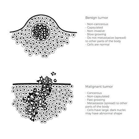 Illustration vectorielle isolée de tumeur maligne et bénigne dans les tissus sains. Propagation des cellules cancéreuses, développement tumoral. Infographie médicale pour l'affichage, l'éducation, la science et l'usage médical.