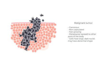 Vector isolated illustration of malignant tumor in healthy tissue. Spreading of cancer cells, tumor development. Medical infographic for poster, educational, science and medical use. Archivio Fotografico - 131841039