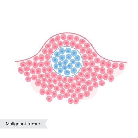 Vector isolated illustration of benign tumor in tissue. Medical diagram for poster, educational, science and medical use. Biological icon or logo.