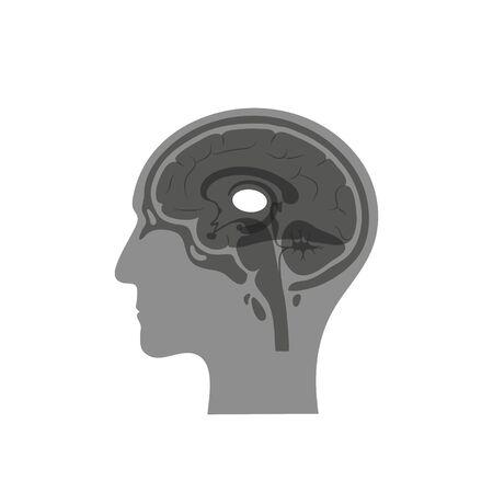 Ilustración aislada del vector del tálamo en la cabeza del hombre. Los componentes del cerebro humano detallan la anatomía. Infografía médica para carteles, educación, ciencia y uso médico. Vista sagital del cerebro