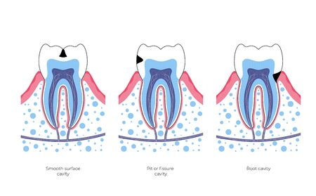 Vector isolated illustration of tooth with caries. Types of teeth decay medical poster. Banner for dentist office, dentistry clinic Vektorgrafik
