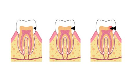 Vector isolated illustration of tooth with caries. Stages of teeth decay development medical poster. Banner for dentist office, dentistry clinic. Enamel and dentin decay 向量圖像