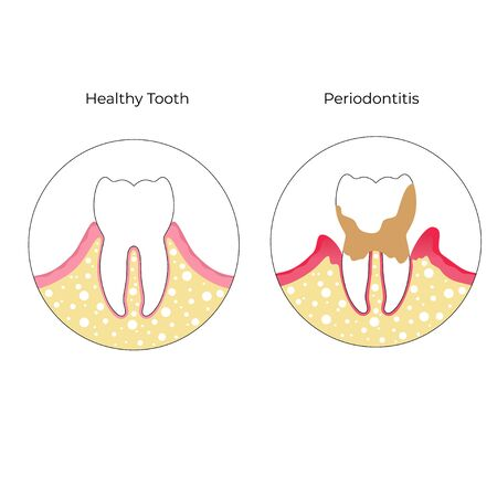 Vector flat isolated illustration of periodontitis. Tooth anatomy infographics. Medical banner or poster illustration. Dental problem. Medical Oral Health. Template of Periodontal Disease  Vettoriali