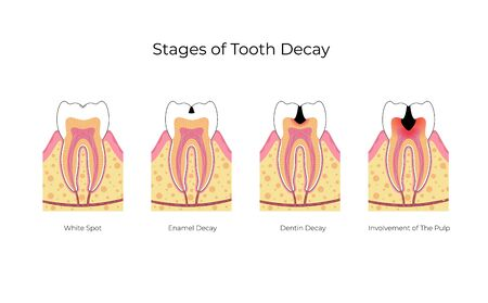 Vector isolated illustration of tooth with caries. Stages of teeth decay development medical poster. Banner for dentist office, dentistry clinic. Enamel and dentin decay