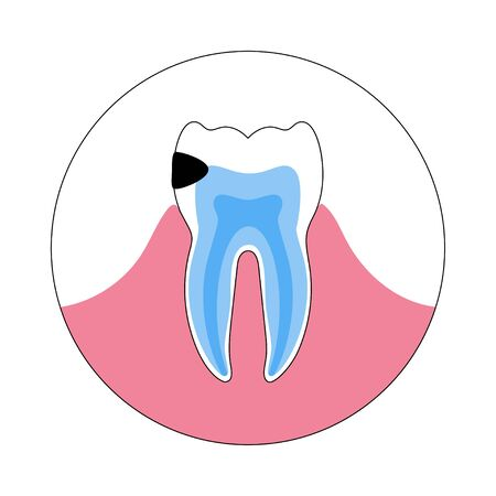 Vector isolated illustration of tooth with caries. Teeth decay medical poster. Banner for dentist office, dentistry clinic 向量圖像