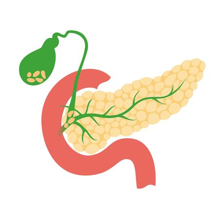 Vector isolated illustration of ill pancreas anatomy. Stones in gallbladder and ducts. Human digestive system icon. Healthcare medical center, hospital, clinic . Internal organ symbol poster design