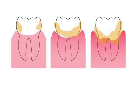 Vector isolated illustration of dental plaque stages. Tooth anatomy infographics. Medical banner or poster illustration.
