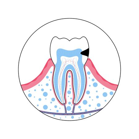 Vector isolated illustration of tooth with caries. Teeth decay medical poster. Banner for dentist office, dentistry clinic Illusztráció