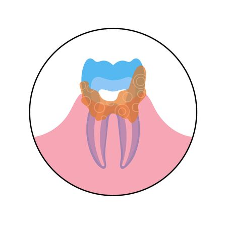 Vector flat isolated illustration of dental calculus, calcified plaque, tartar. Teeth anatomy infographics. Medical banner or poster illustration. Dental problem.