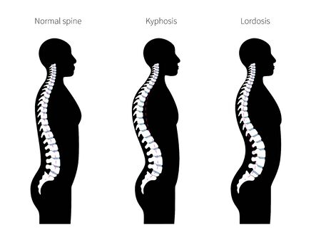 Spinal deformity flat vector illustration. Kyphosis, lordosis of spine infographics. Diagram with spine curvatures and healthy backbone. Body posture defect. Medical, educational and science banner Vector Illustration