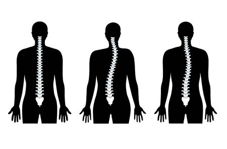 Scoliosis flat vector illustration. Types of scoliosis of spine infographics. Diagram with spine curvatures and healthy backbone. Body posture defect. Medical, educational and science banner