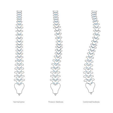 Scoliosis flat vector illustration Standard-Bild