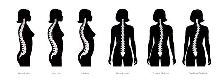 Spinal deformity flat vector illustration Illustration