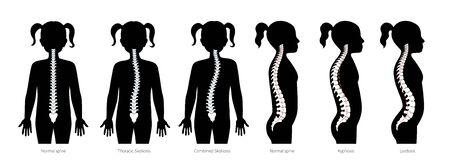 Girl spinal deformity flat vector illustration