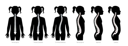 Girl spinal deformity flat vector illustration
