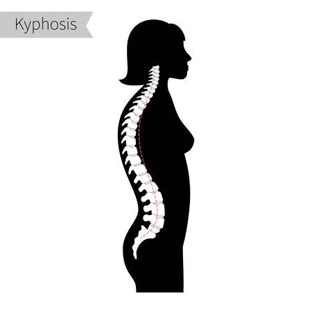 Kyphosis flat vector illustration. Illustration