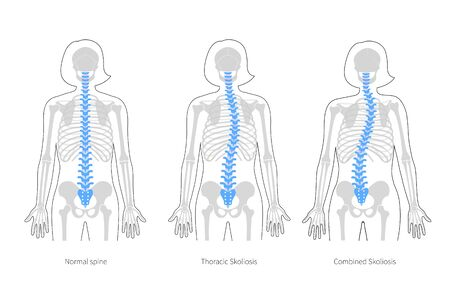Woman scoliosis flat vector illustration. Types of scoliosis of spine infographics. Diagram with spine curvatures and healthy backbone. Body posture defect. Medical, educational and science banner