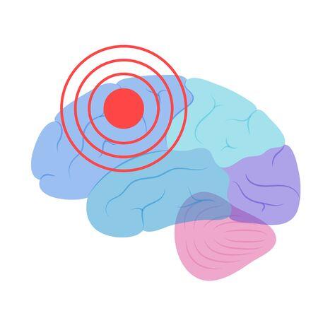 Pain Brain Illustration Illustration