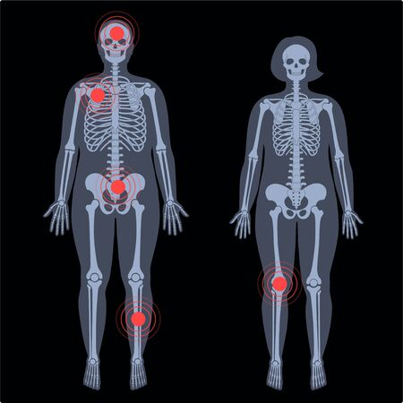 Skeleton x ray Illustration