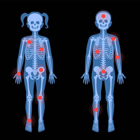 Skeleton x ray Illusztráció