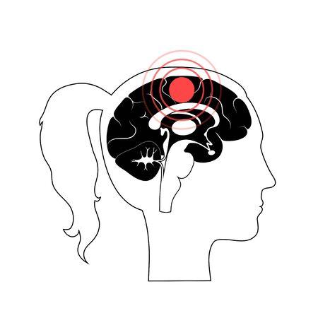 Pain Brain Illustration Illusztráció