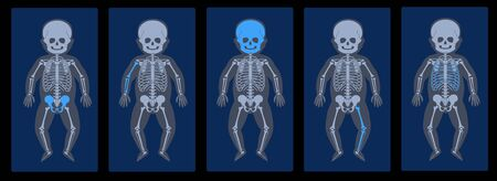 Skeleton x ray Illustration