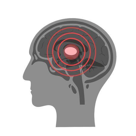 Pain Brain Illustration Vector Illustration