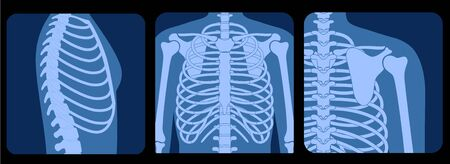 Skeleton x ray Vectores