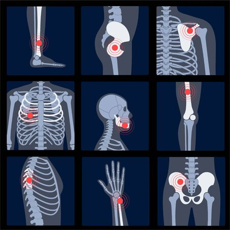 Skeleton x ray Ilustracja