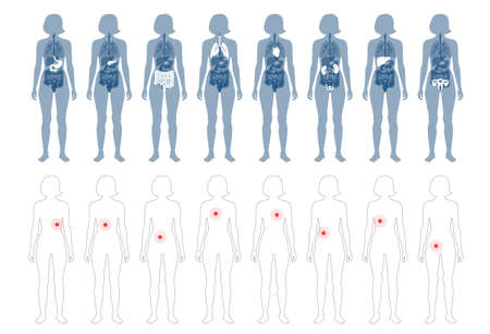 Set with flat vector isolated illustrations of pain and inflammation in adult human female body. Digestive system anatomy. Esophagus, stomach, duodenum and other internal organs icon. Иллюстрация